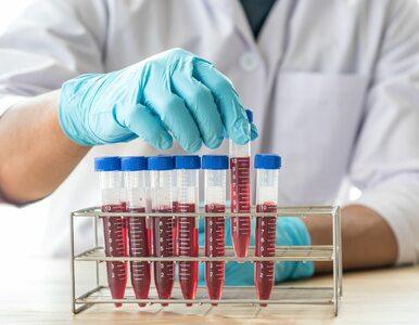"""<a href=""""https://zdrowie.wprost.pl/koronawirus/10377152/twoja-grupa-krwi-moze-przewidywac-ryzyko-wystapienia-ciezkiego-covid-19.html?utm_source=zdrowie.wprost.pl&utm_medium=feed&utm_campaign=rss"""">Twoja grupa krwi może przewidywać ryzyko wystąpienia ciężkiego COVID-19</a> thumbnail  Dlaczego mężczyźni mogą doświadczyć gorszego przebiegu COVID-19? c112416a1ba378f3eefbab3cec7e"""